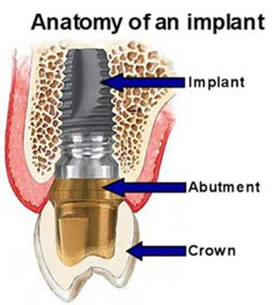 anatomy-of-dental-implant-3152655-7488927